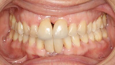 Dentiste Meusnes